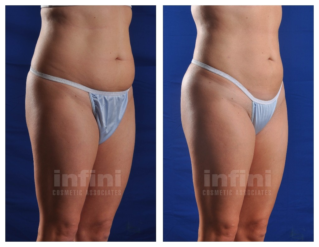 Female Liposuction Before and After Photos: Abdomen