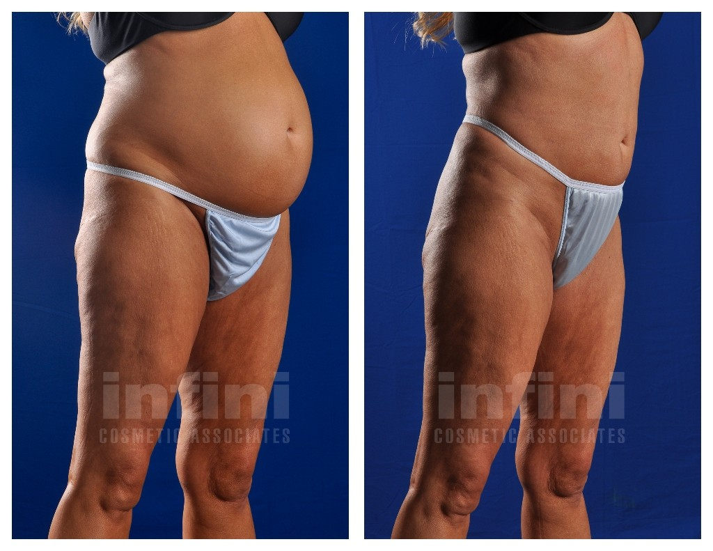 And before after pictures liposuction