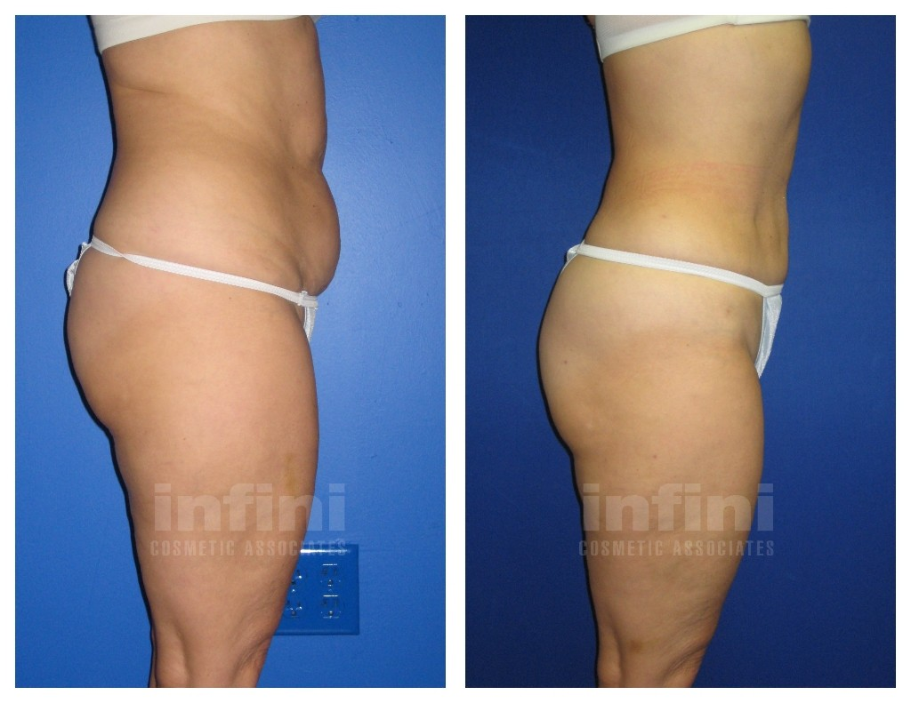 Female Liposuction Before And After Photos Abdomen