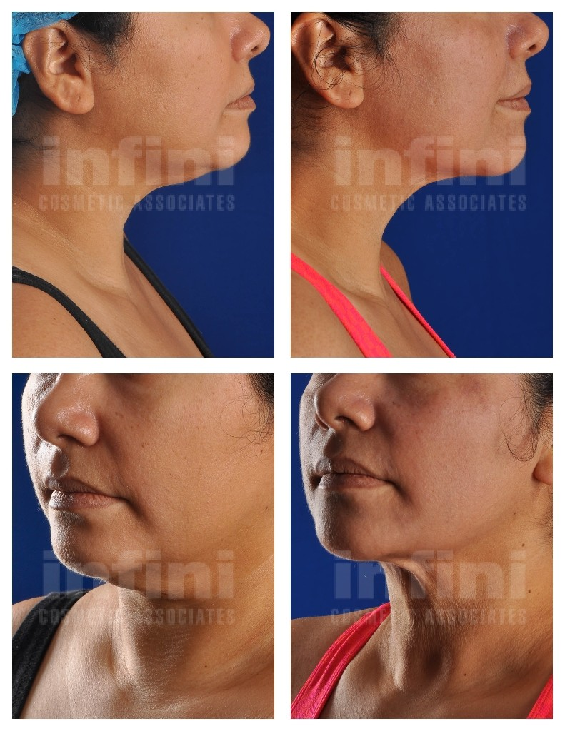 Female Chin Liposuction Before and After | Infini Phoenix