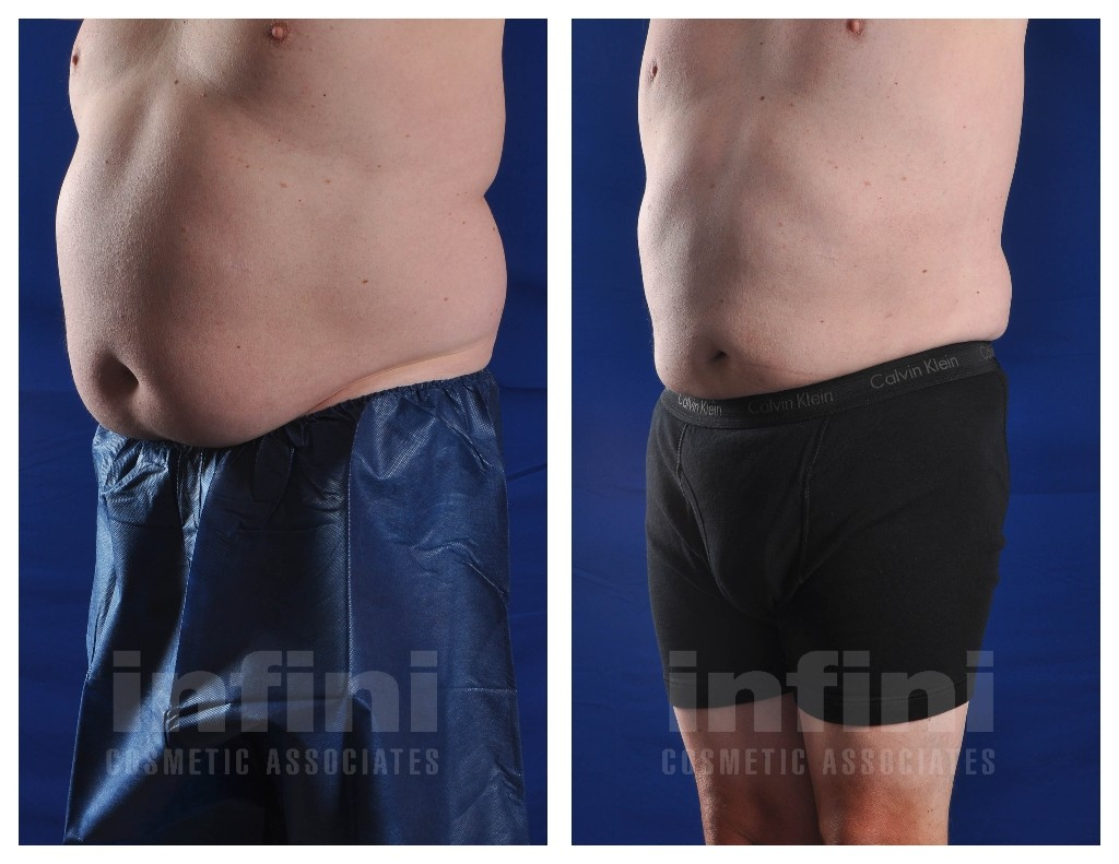 Male Liposuction Before Amp After Photos Stomach Phoenix
