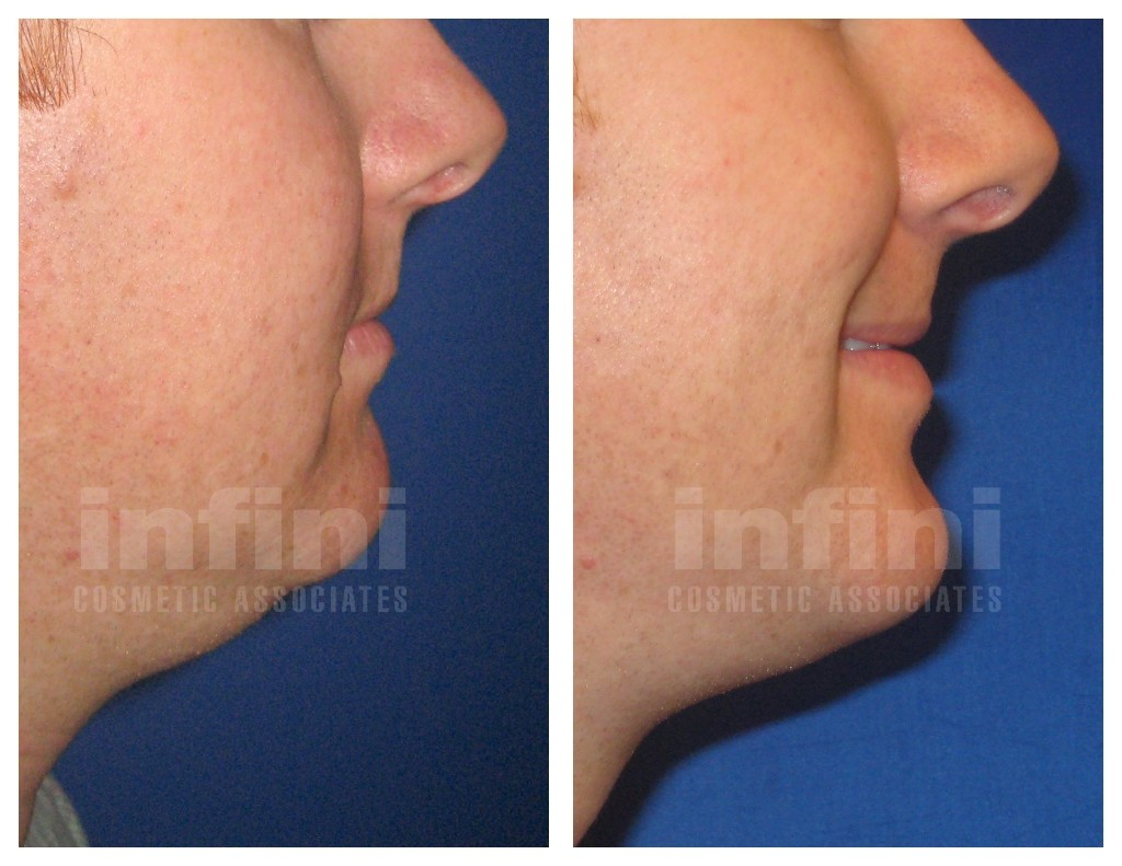 Male Chin Liposuction Before and After | Infini Phoenix