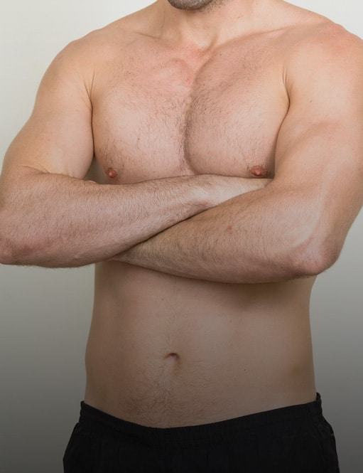 Male Liposuction Patient Story