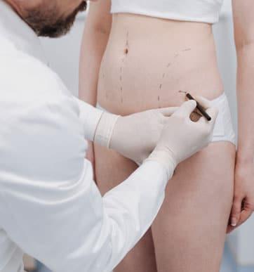 5 preguntas para hacerle a su cirujano antes de someterse al procedimiento de liposucción