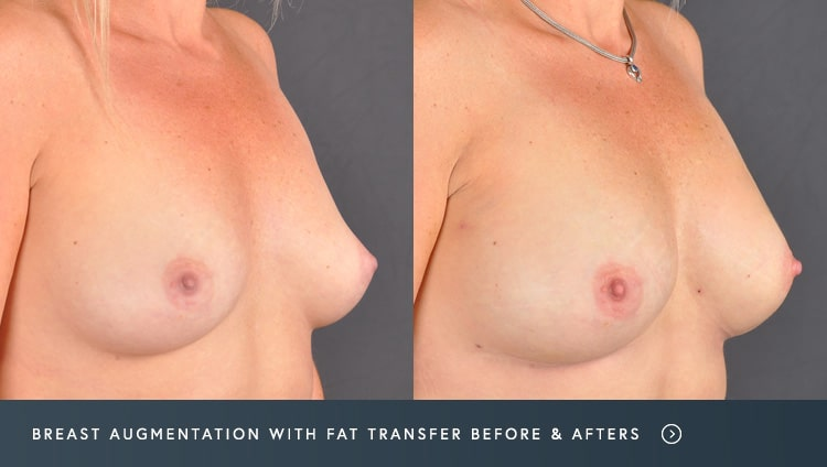 Breast Augmentation With Fat Transfer Before and After