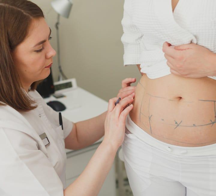 Smart Liposuction Consultation