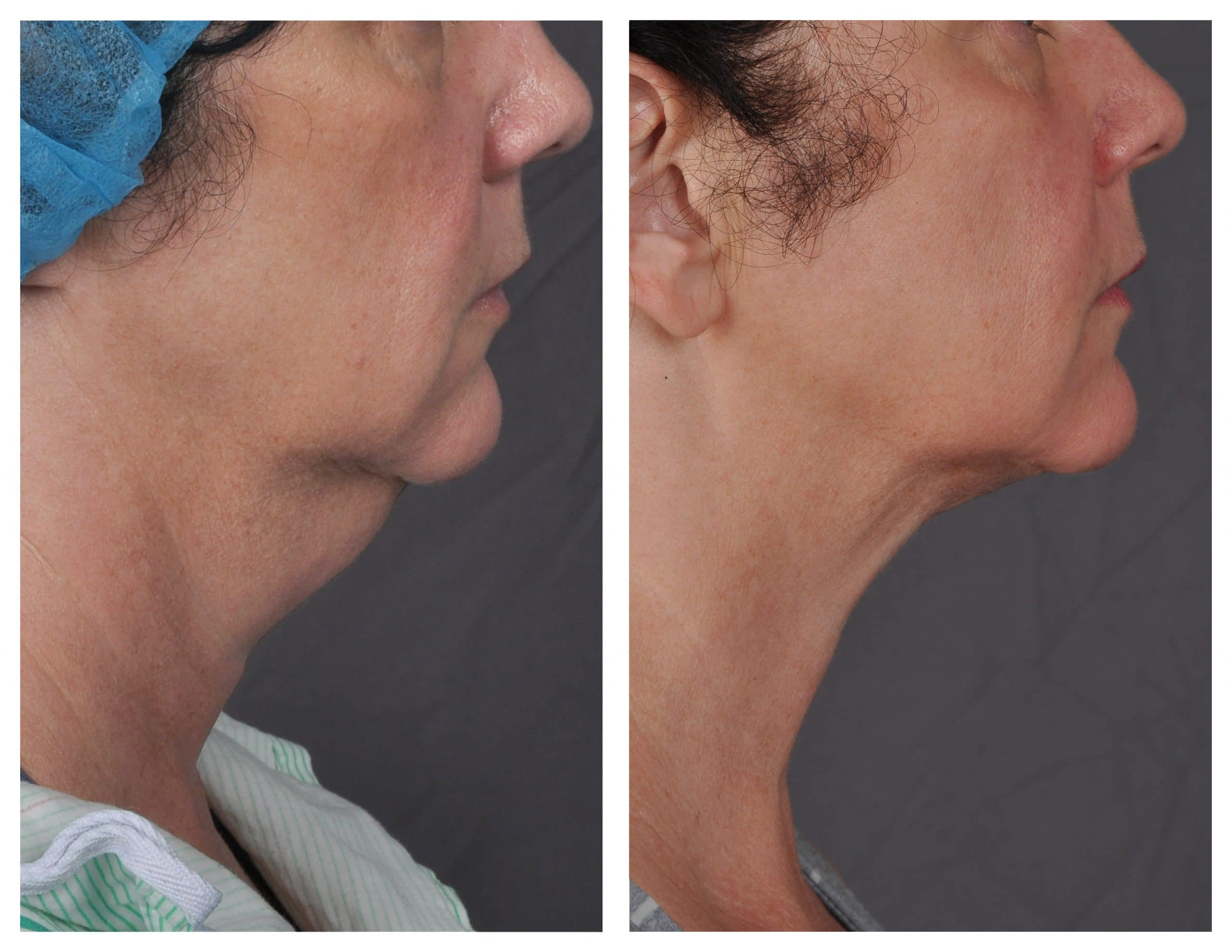 j-plasma before and after