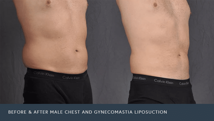 Male Chest and Gynecomastia Before and After