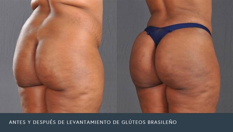 Antes y Después Levantamiento de Glúteos Brasileño