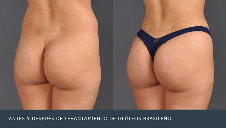 Antes y Después de Levantamiento de Glúteos Brasileño