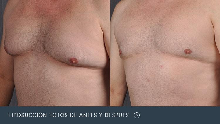 Liposuccion fotos de antes y despues
