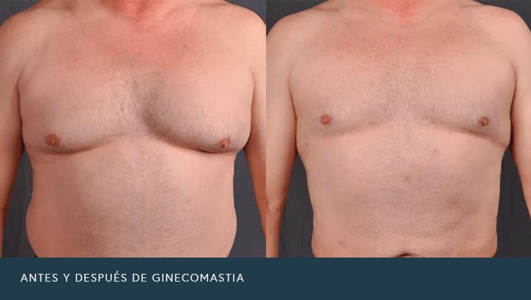 Antes Y después de ginecomastia