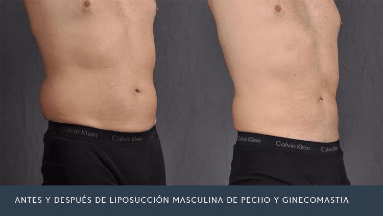 Antes Y después de liposucción Masculina De Pecho Y Ginecomastia