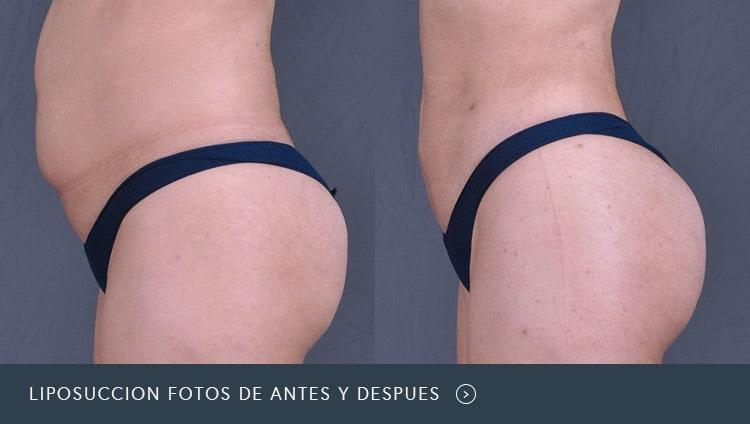 Liposucción Fotos de Antes y Después