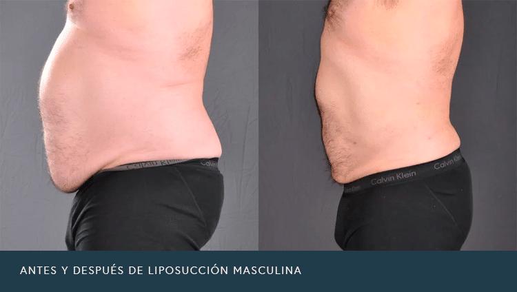 Antes y Después de Liposucción Masculina