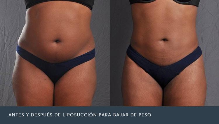 Antes y Después de Liposucción Para Bajar de Peso