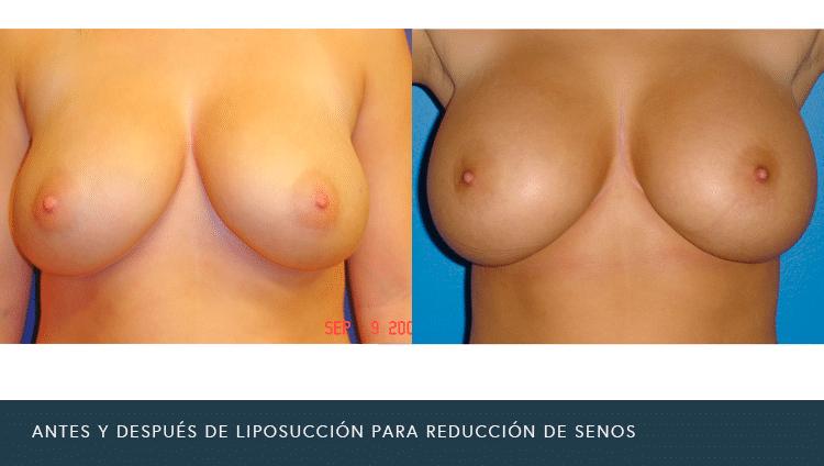 Antes Y después De liposucción para la reducción de senos