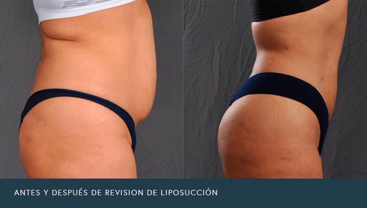 Antes y Después de Revisión de Liposucción