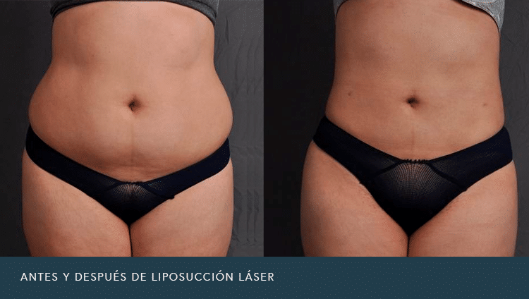 Antes y Después de Liposucción Láser