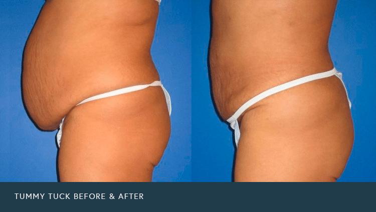 Liposuction Or Tummy Tuck Phoenix Liposuction