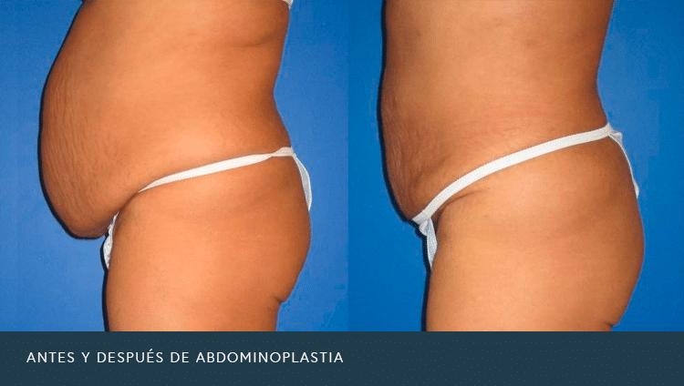Antes y Después de Abdominoplastia