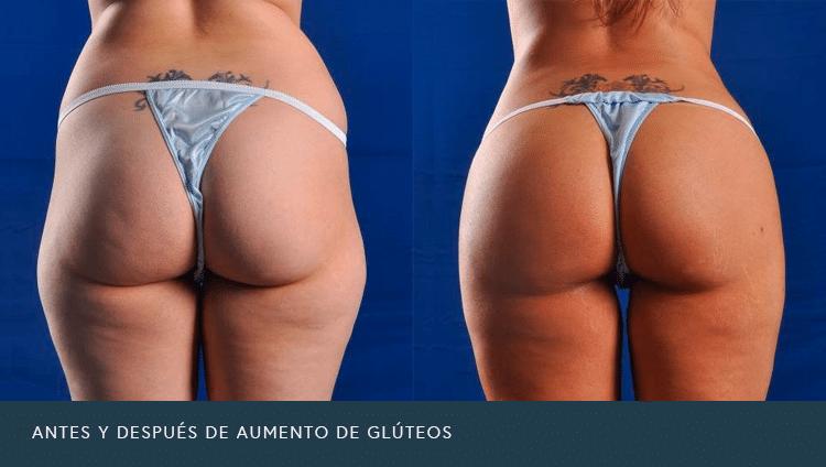 Antes y Después de Aumento de Glúteos