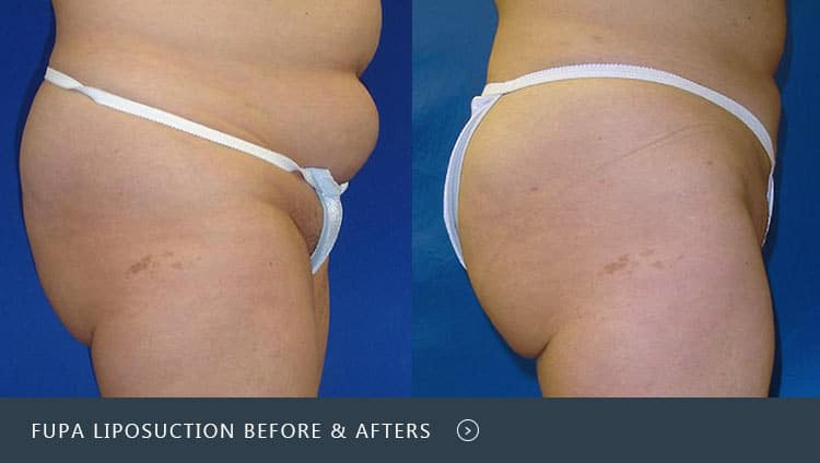 fupa liposuction before and afters
