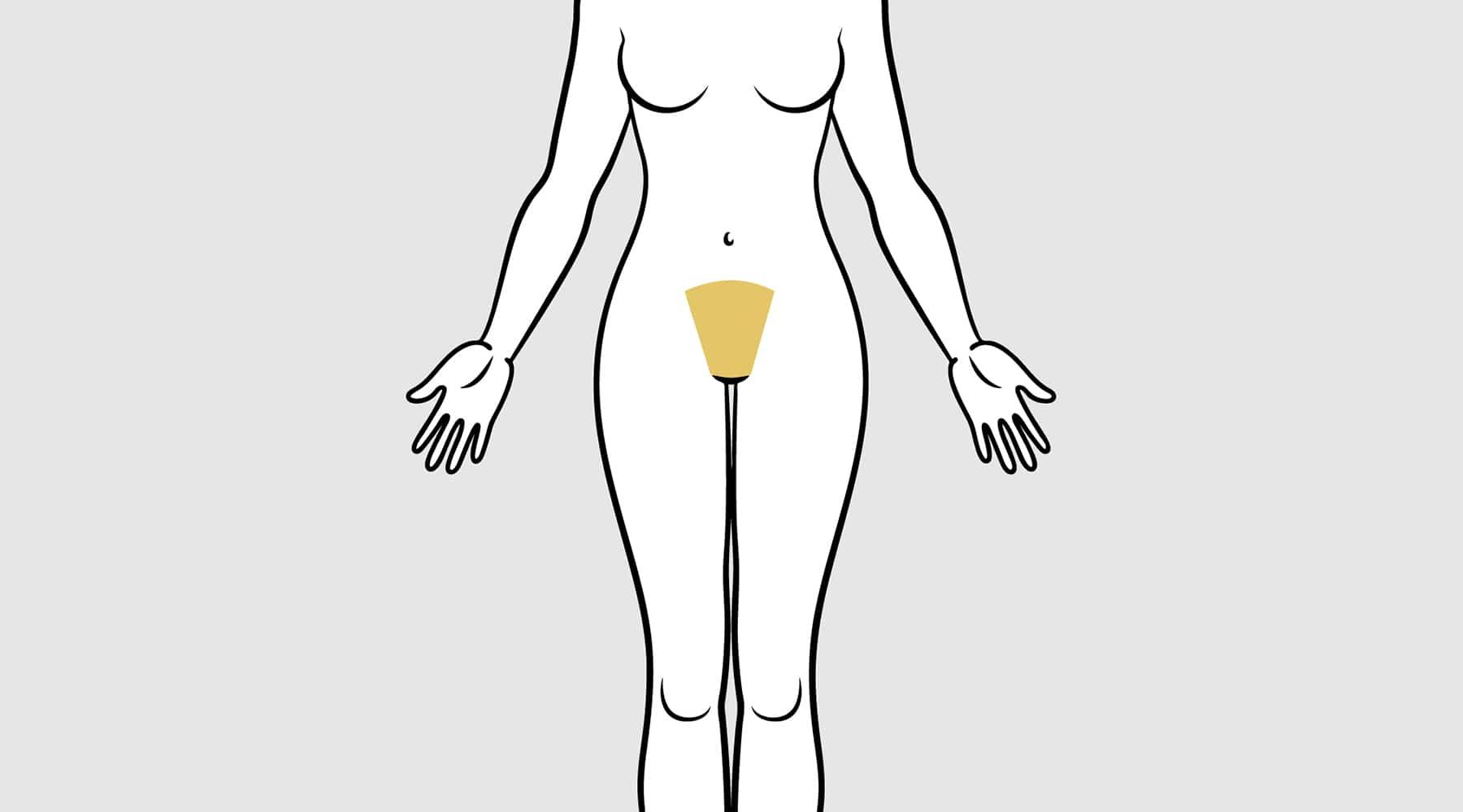 FUPA, FAT UPPER PELVIC AREA  Phoenix Liposuction  Phoenix